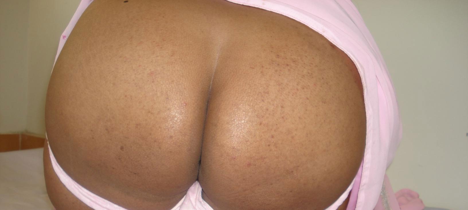Butt sexy super