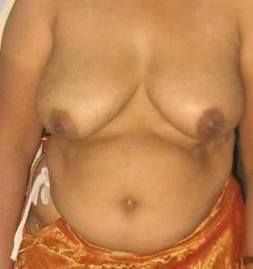 nude tits fat hottie