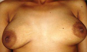 nude bhabhi nipple photo