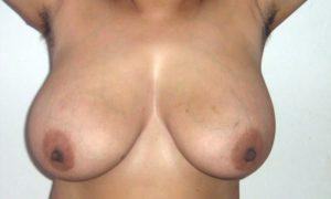 Nude desi boobs aunty